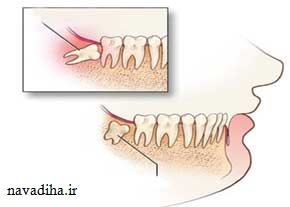 بایدها و نبایدهای دندان عقل
