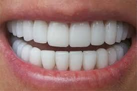 عوارض دندانهای هالیوودی