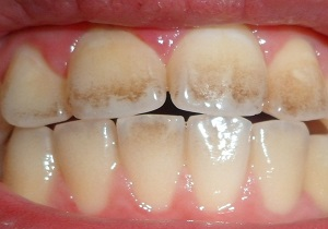 جرمگیری دندان با ۶ ماده طبیعی و موثر خانگی