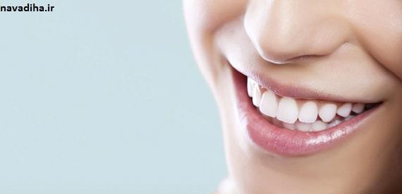 غذاهایی که دندانهایتان را لکهدار میکنند