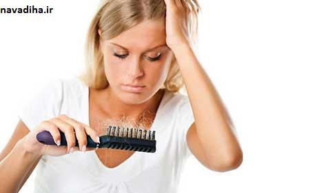 درمان ریزش مو زنان