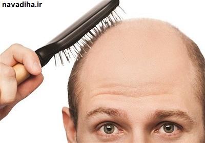 """جلوگیری از ریزش موی سر با استفاده از """"جوشانده آویشن"""""""