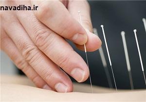 کاهش وزن با طب سوزنی/ کاربرد طب سوزنی برای درمانهای زیبایی/ طب سوزنی توان درمان دیابت را دارد؟