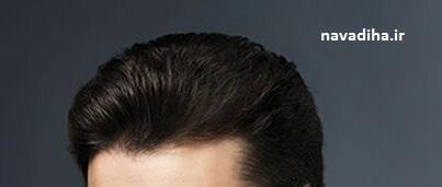 چند نکته در مورد سلامت موهایتان