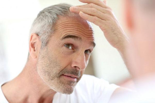 راز و رمز سلامت موها در تابستان