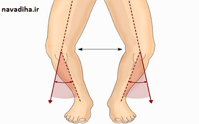 جلوگیری از پرانتزی شدن پاها