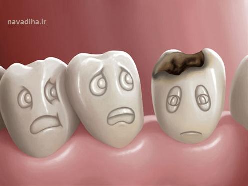 نوشیدنیهای ضد دندان