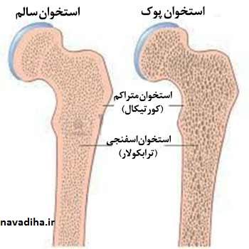 درمان_پوکی_استخوان