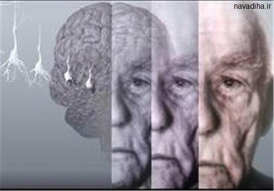 چرا برخی افراد پیرتر از سنشان جلوه میکنند