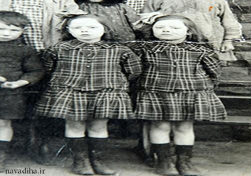 عکس دوقلوهایی که ۱۰۳ سال است باهماند!