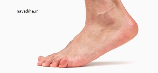 درمان ورم پا با روش طبیعی