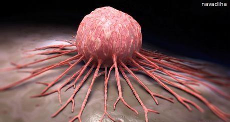 درمان بعضی از انواع سرطان در طب سنتی