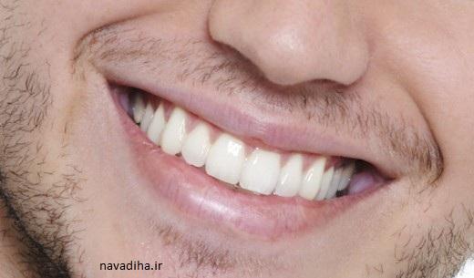 جرم گیری دندان به روش خانگی و رایگان