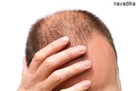 جلوگیری از ریزش شدید مو